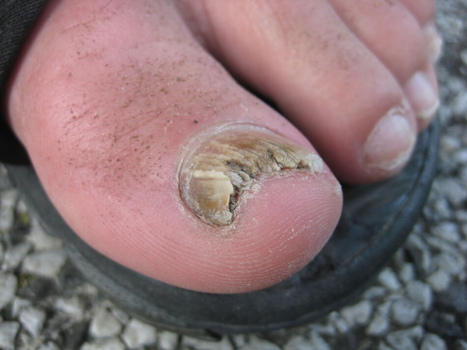 fungal-nail-infections advice from Heel The Soles footcare